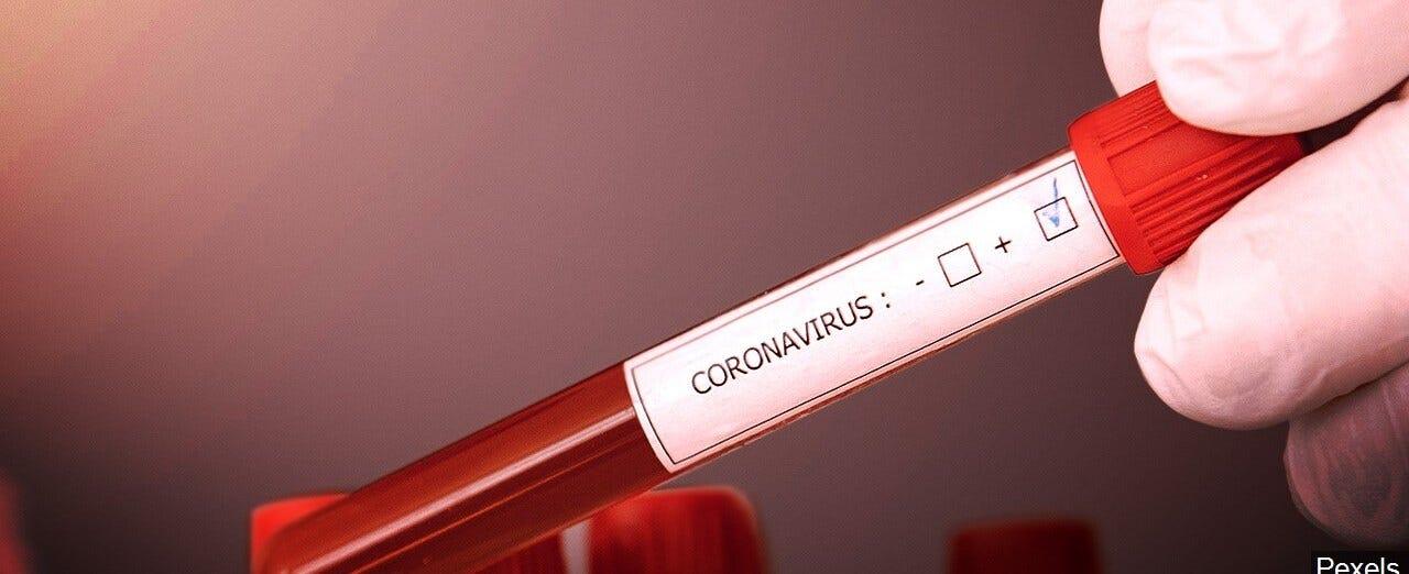 Should the U.S. slow down COVID-19 testing?